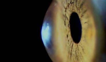 Desarrollan un iris artificial que corrige los trastornos de la visión (Foto. CSIC)