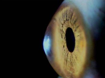 Una prueba ocular con IA detecta los primeros síntomas de glaucoma (Foto. CSIC)