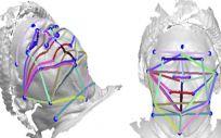 Las fotos faciales en 3D podrían ser una herramienta de detección de apnea del sueño. (Foto. Academia Americana de Medicina del Sueño)