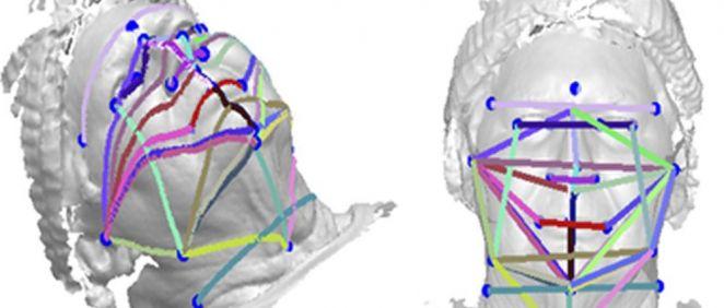 Las fotos faciales en 3D podrían ser una herramienta de detección de apnea del sueño