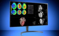 Pantallas médicas de vanguardia para la atención radiológica (Foto. Double Black Imaging)