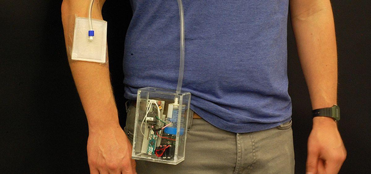 Dispositivo de ozonoterapia portátil para el tratamiento de heridas crónicas. (Universidad de Purdue)