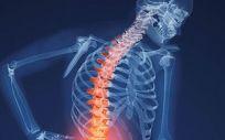 Ensayos personalizados en 3D para facilitar los procedimientos de fusión vertebral
