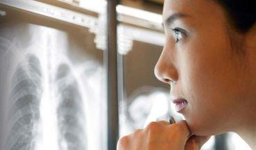 Desarrollan una app de IA para los rayos X de tórax que facilita la priorización de los neumotórax. (Foto. Radlogics)