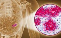 Una biopsia de mama guiada por imagen es capaz de predecir el cáncer residual.