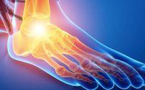 Crean nuevos sistemas de recubrimiento para el piel y el tobillo
