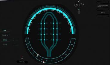 El software de mapeo VX1 IA (Foto. Volta Medical)