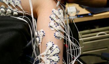 Nueva cirugía para el control de prótesis (Foto MIT)