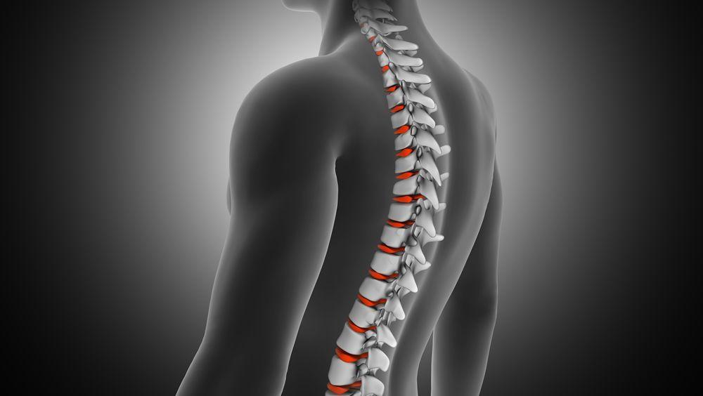 Un cemento óseo radiactivo es más seguro en el tratamiento de tumores espinales (Foto. Freepik)