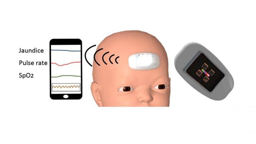 Primer sensor portátil para recién nacidos que es capaz de medir continuamente la bilirrubina. (Foto. Universidad Nacional de Yokohama)