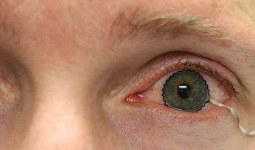 Lente de monitorización ocular (Foto. Purdue Mechanical Engineering)