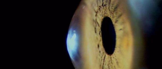 Escáner robótico automatiza las imágenes de diagnóstico en el ojo (Foto. VIOBIO LAB CSIC  )