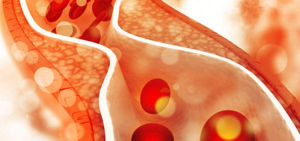 Crean un biopegamento de proteína de mejillón para sellar fístulas en el interior del cuerpo