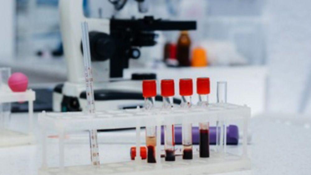 Tubos de ensayo con muestras de sangre para analizar (Foto. Freepik)