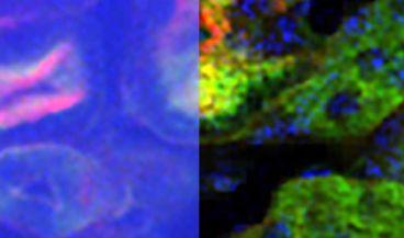 Imagen de la comparativa de la captación de tejido renal con microscopia de dos fotones convencional (izquierda) y la técnica profudna desarrollada por el estudio (derecha). (Foto. MIT)