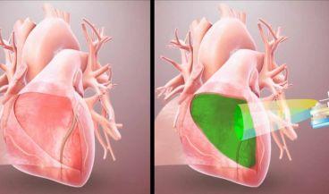 Los investigadores han desarrollado un dispositivo que rocía de manera segura y precisa el hidrogel dentro del área donde se realiza la cirugía a corazón abierto (Foto: University of California San Diego)