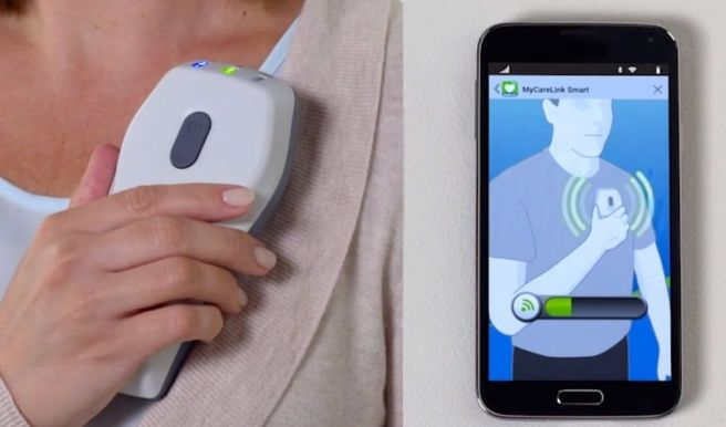 Medir La Presión Arterial Con Tu Teléfono Móvil