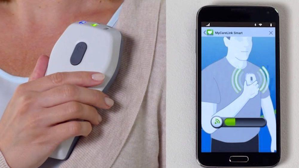 Un monitor portátil permite controlar los marcapasos desde el móvil