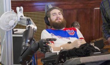 Un tetrapléjico recupera el sentido del tacto gracias a un chip cerebral y  a un brazo robótico