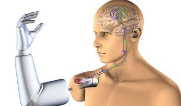Diseñan la primera prótesis que se conecta con huesos, nervios y músculos