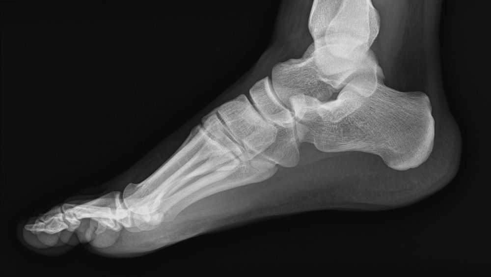 Un sistema reconstruye fracturas óseas en 3D