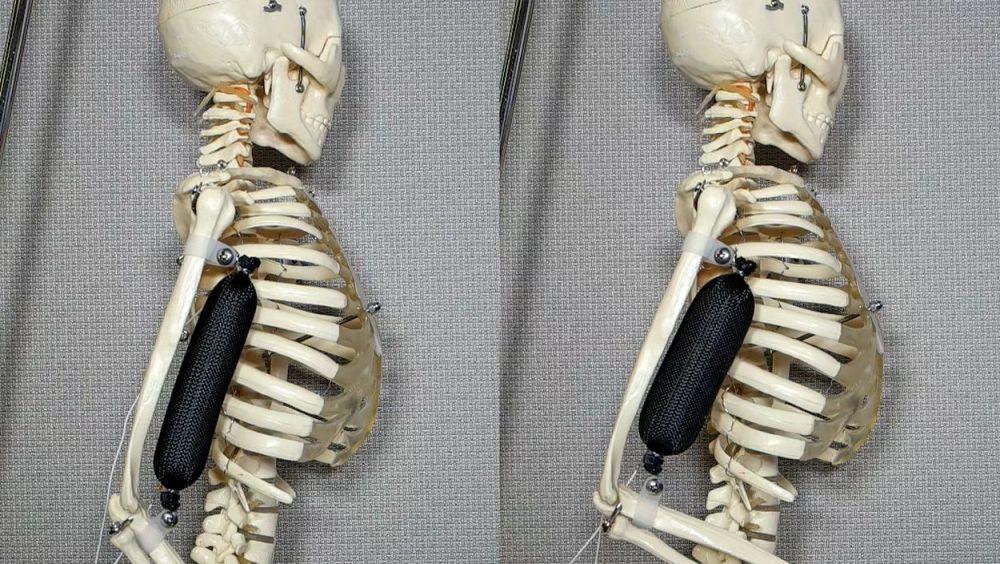 El músculo artificial levanta el brazo de un esqueleto a una posición de 90 grados./ Aslan Miriyev