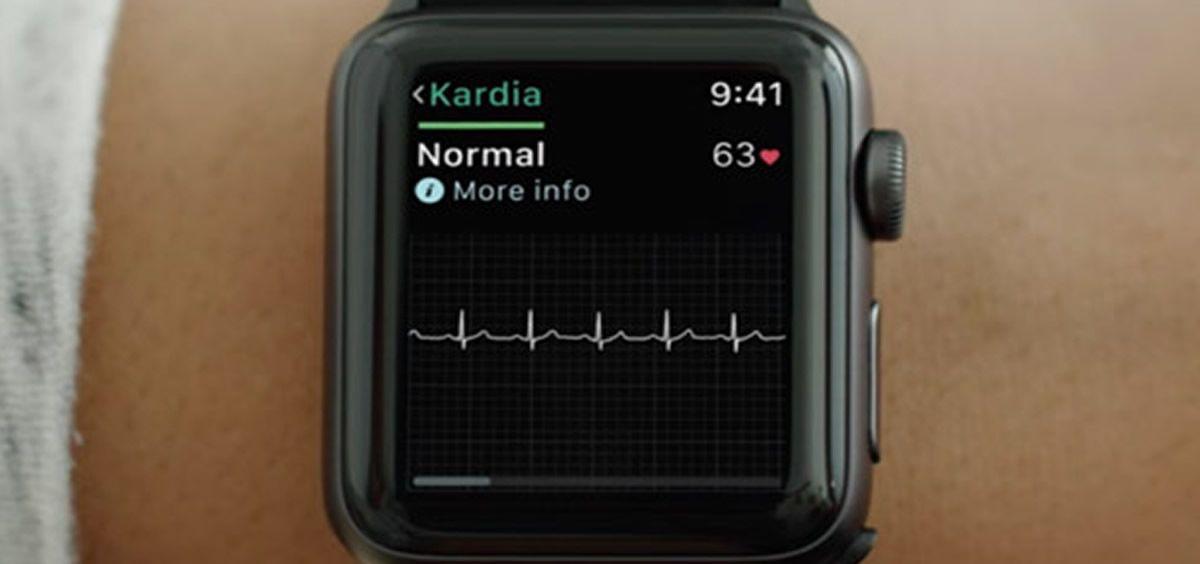 La FDA ha aprobado una correa para practicar electrocardiogramas junto al Apple Watch