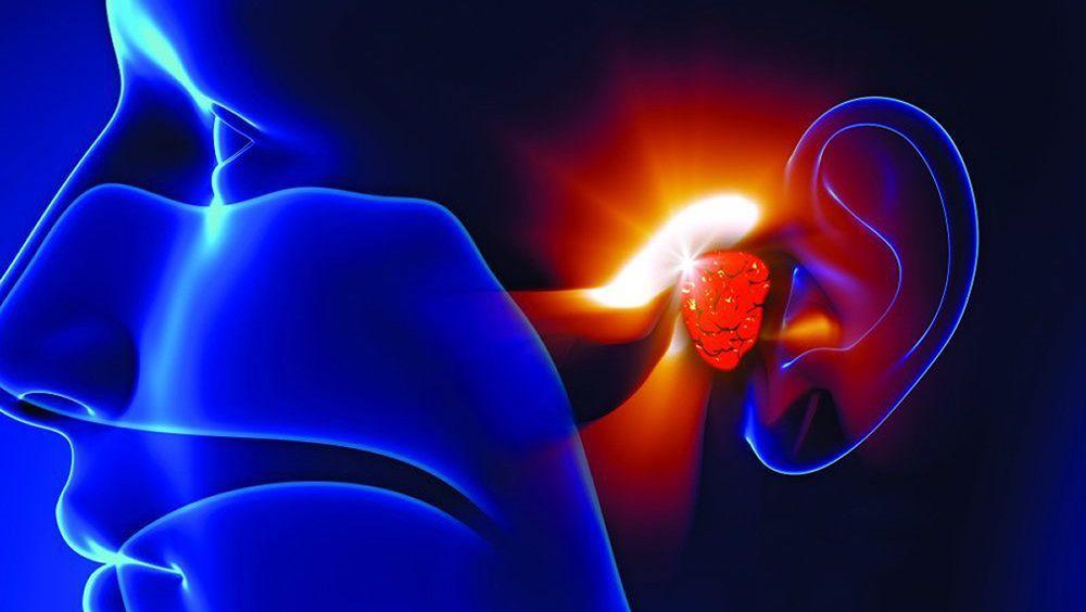 Otoplan, sofware de planificación quirúrgica para oído