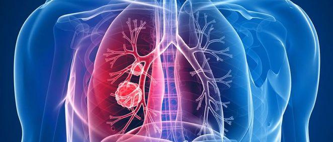 El quirófano híbrido agiliza el diagnóstico y tratamiento del cáncer de pulmón