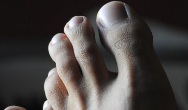 Aplican tecnología textil 3D para evitar las úlceras por presión en el pie