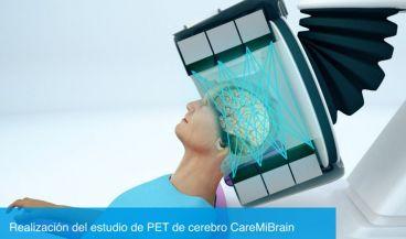 El primer PET de cerebro se está probando en un hospital español