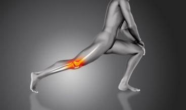 Un implante de cartílago podría ser la solución para sanar rodillas dañadas