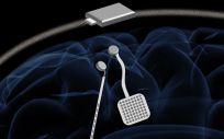 Apariencia del chip implantado en un cerebro que permitiría controlar enfermedades cerebrales