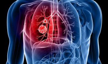 Inteligencia artificial para tumores pulmonares