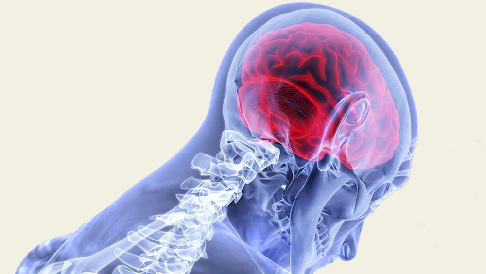 La utilización de una forma sintetizada de veneno de escorpión permite que los tumores cerebrales se iluminen para que los cirujanos detecten los límites con el tejido cerebral sano