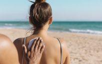 La radiación solar es la principal causa de cáncer de piel en nuestro país (Foto. Freepik)