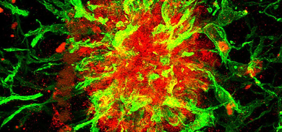 Ejemplo de una placa amiloidea humana positiva para la proteína SFRP1 (rojo) y rodeada de células gliales (verde) (Foto. Pilar Esteve CSIC)