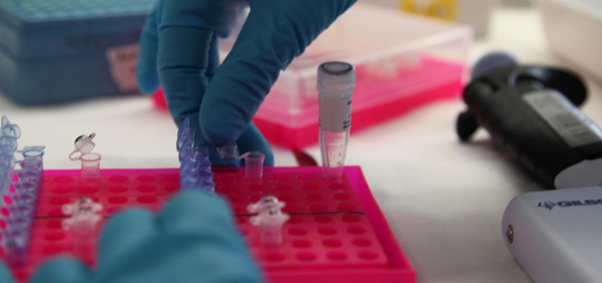 Biomarcadores (Foto. Cibir)