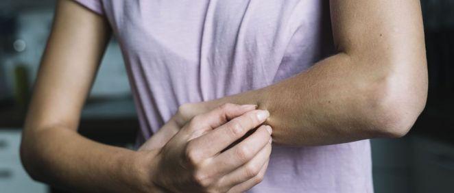 La dermatitis atópica cursa con brotes intermitentes de distinta intensidad (Foto. Freepik)