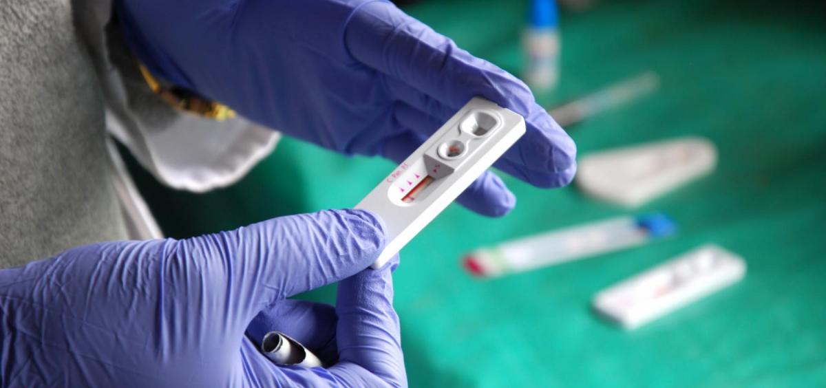 Prueba de VIH (Foto. Comunidad de Madrid)