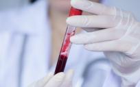 Muestra de plasma sanguíneo (Foto. Freepik)