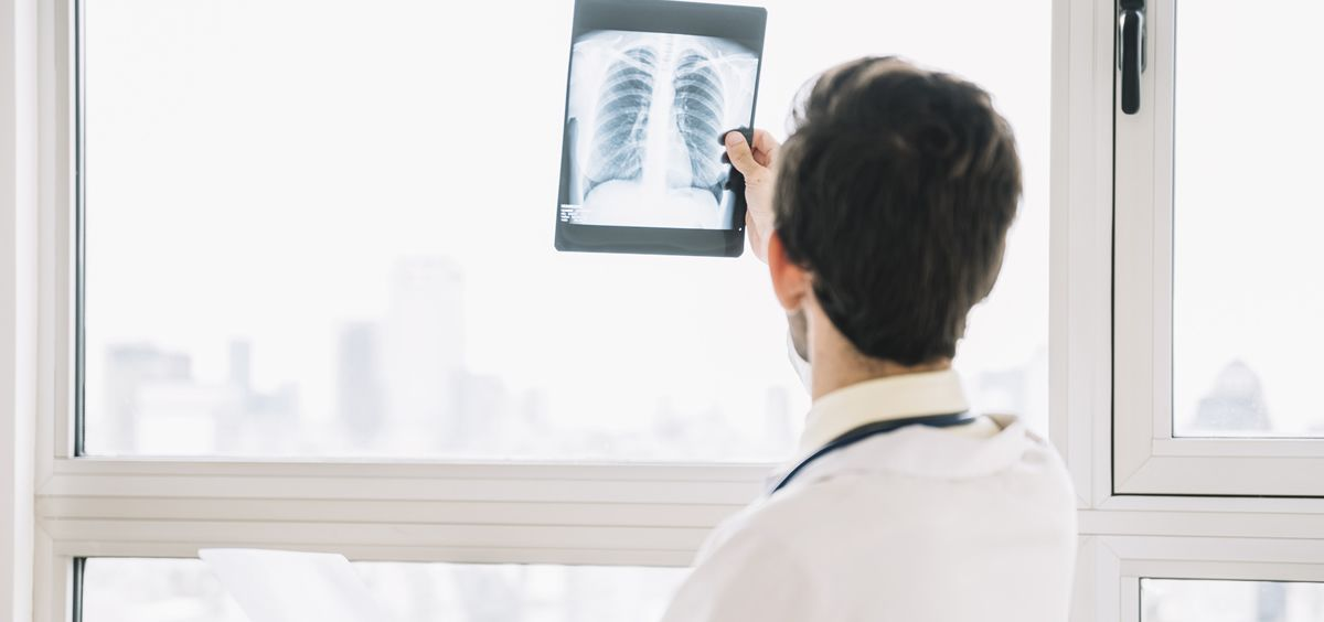 Médico con una radiografía del pulmón (Foto. Freepik)