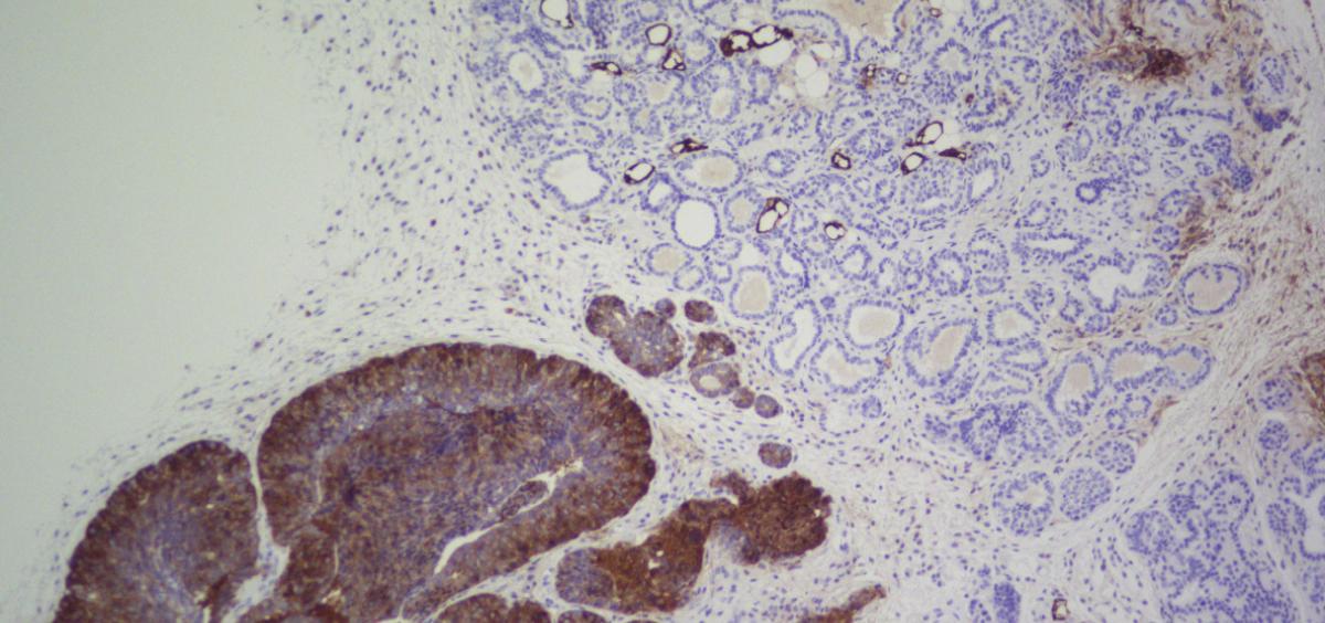 Imagen de inmunohistoquímica de la enzima FASN (Foto. CNIO)