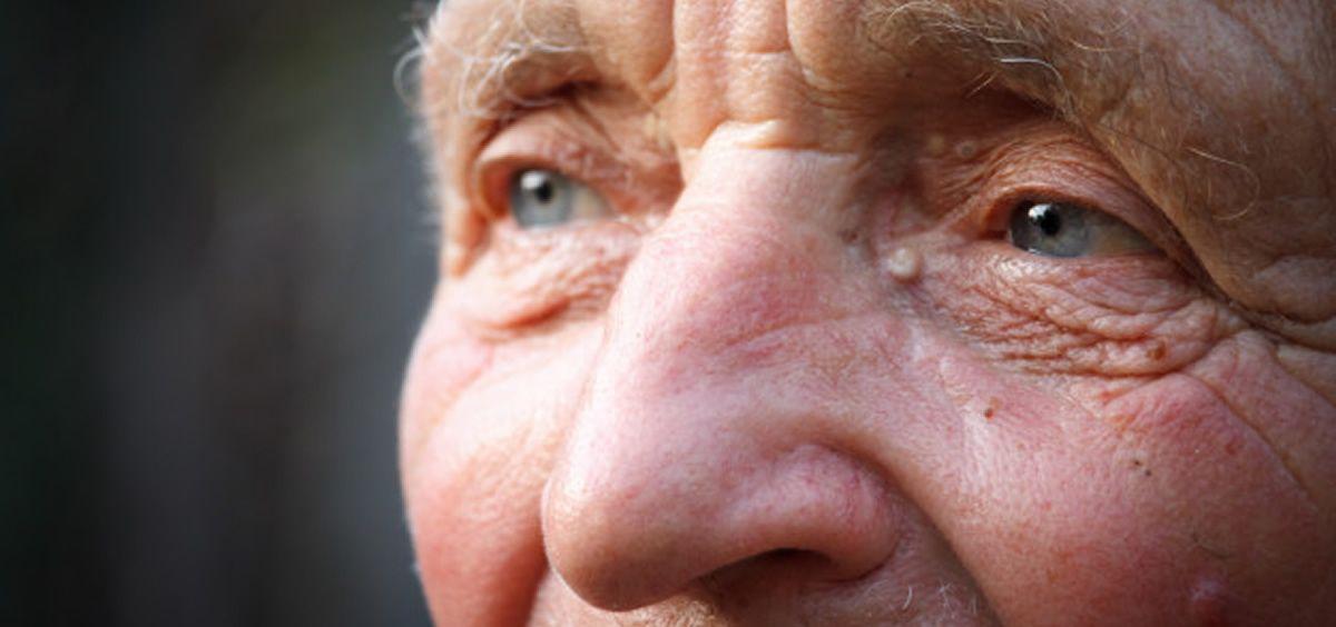 Los cuidadores de los pacientes con alzhéimer reclaman más ayudas (Foto. Freepik)
