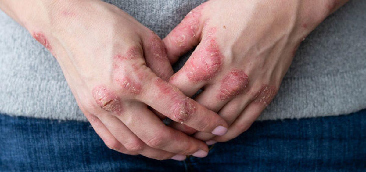 Lesiones causadas por la dermatitis atópica (Foto. Freepik)