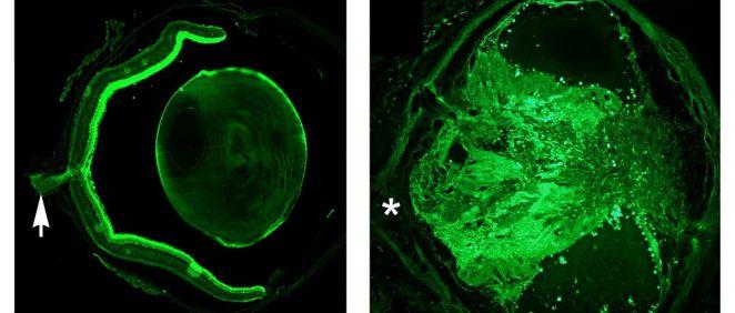 Corte transversal de un ojo normal (izquierda) que muestra el cristalino, la retina y el nervio óptico (flecha). A la derecha, un ojo malformado que muestra la ausencia de nervio óptico (asterisco).  / Pedro de la Villa