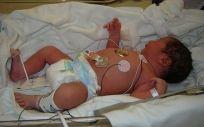 Expertos apuestan por el Big Data en el abordaje de la neonatología