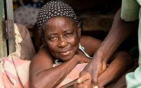 Más de 1.600 millones de personas, una de cada seis en el mundo, sufre una de estas enfermedades olvidadas (Foto. Elssie Ansareo / Anesvad)