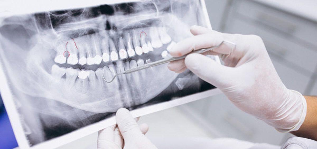 La protección de los pacientes frente a la radiación es una de las grandes preocupaciones de los profesionales sanitarios a la hora de realizar radiografías (Foto. Freepik)