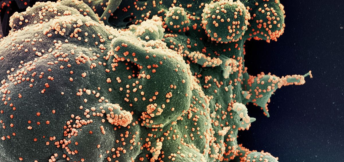 Micrografía electrónica coloreada que muestra una célula invadida por el SARS-CoV-2 (en naranja), obtenida de muestras de un paciente con Covid-19 (Foto: ISCIII)